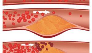 Tensiunea arterială este de obicei măsurată la