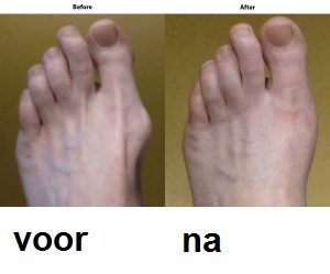 Valgorect foot care gel, ingredients - hoe aanvragen?