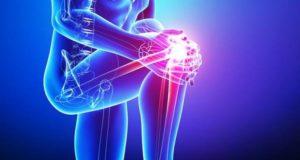 Knee Active Plus arvamused, foorum, kommentaarid