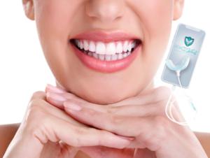 Mobile White kit de blanqueamiento dental, cómo usarlo, como funciona, efectos secundarios