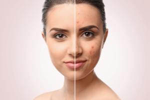 Skin Vitalis πόσο κοστίζει, τιμή